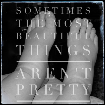 Sometimes The Most  Beautiful Things Aren't Pretty